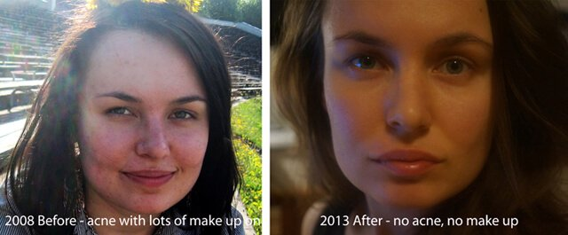 Elisa Oras' facial complexion before and after adopting a raw food diet