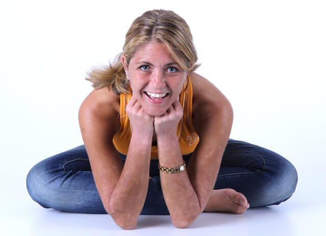 Louise Koch leans forward with her chin resting on her hands