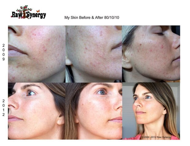 Photos showing Alicia Grant's skin before and after adopting a low-fat raw food diet